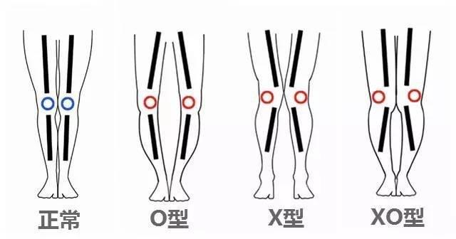 有冇人x/o/xo型腿既絲打? | LIH...